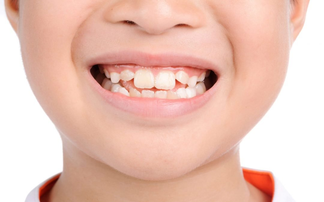 Children's Teeth – Cautions and Considerations